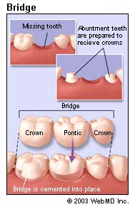 dental-bridges