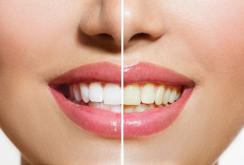 Arlington Heights IL Dentist | Stained Teeth